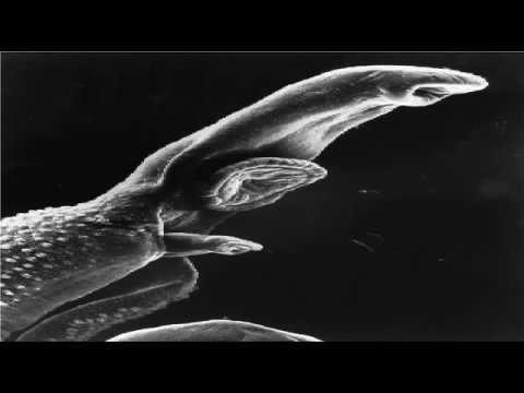 Radiolab – Parasites [Dickson Despommier, Dr. Robert Sapolsky, Fuller Torrey, Pat Walters]