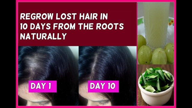 Regrow Lost Hair in 10 Days from the Roots Guaranteed – No hair loss and fast hair growth