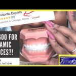 I got a consultation for braces at 27yrs old | Orthodontic Experts Chicago